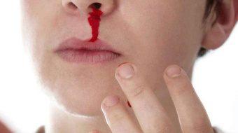 Mơ thấy người khác chảy máu đánh con gì, số mấy, điềm báo gì, tốt hay xấu?